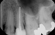 Root Canal and Endodontic Therapy